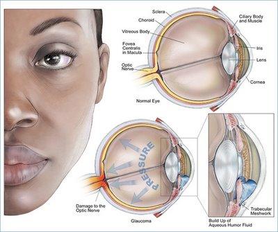Glaucoma_2