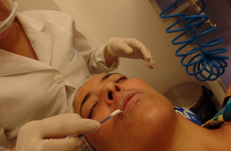 Outra etapa importante é a proteção dos lábios. Emmanuela tem sempre esse cuidado, para evitar que o ácido entre em contato com a pele sensível da boca.