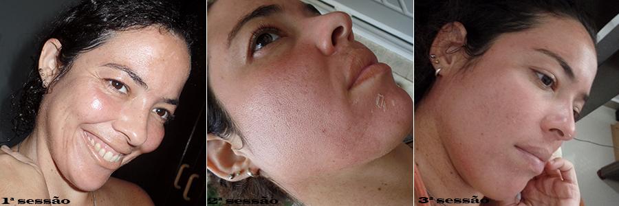 tratamento manchas no rosto | foto: conversa de menina
