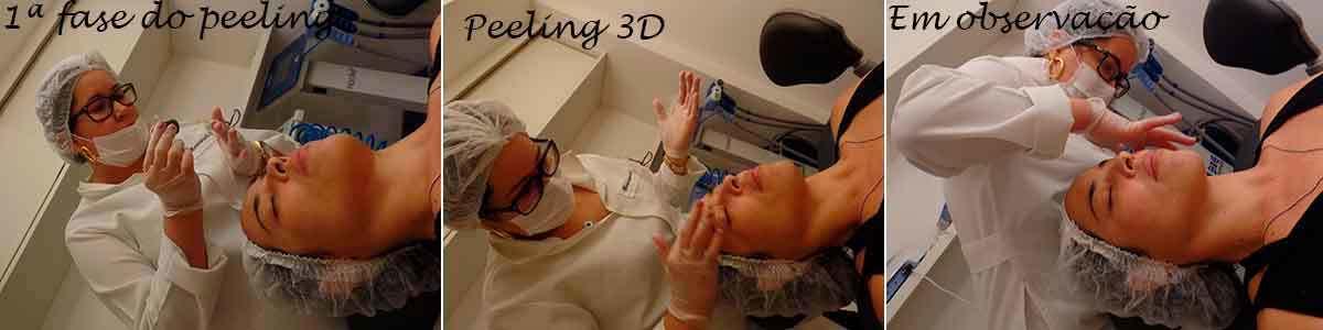 tratamento para manchas ! foto: conversa de menina