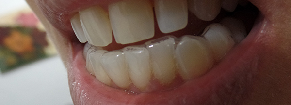 Minha 2ª Consulta De Clareamento Dental Conversa De Menina