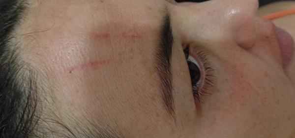 Marca da agulha na testa